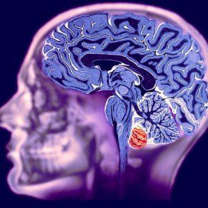 pokazanija-k-mrt-golovnogo-mozga