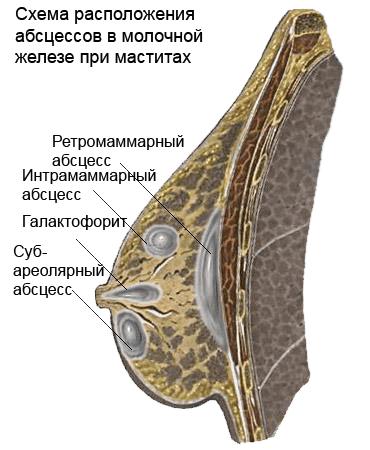 poslerodovoy_mastit