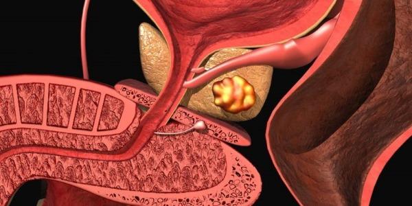 Причины появления хронического простатита