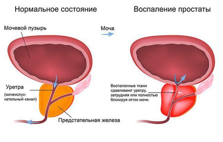 Лечение предстательной железы в домашних условиях