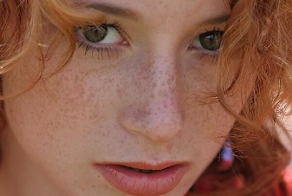 Что делать если нарушена пигментация кожи