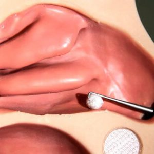 udalenie tela iz nosa