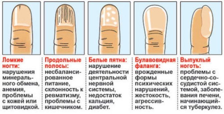 На ногтях темные полоски