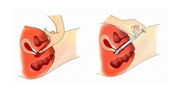 Свечи при беременности от молочницы клотримазол