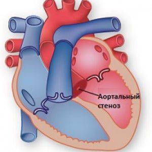 Aortalnyiy-stenoz