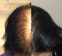 androgennaya-alopeciya