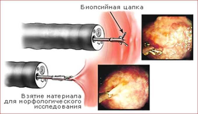 biopsiya-matki