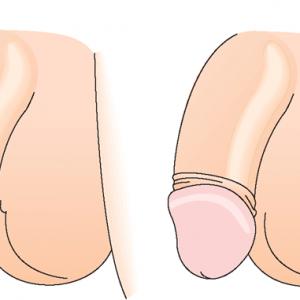 Член головка закрыта кожей обрезание возврас