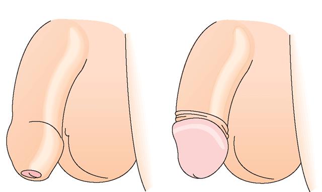 Член обрезания