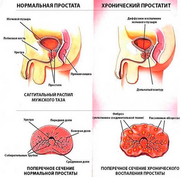 hronicheskiy-prostatit
