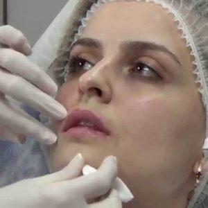 operacii