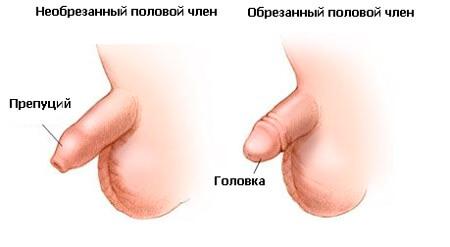 neobrezannyi-i-obrezannyi-polovoi-chlen