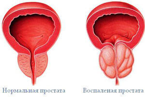 prostatit