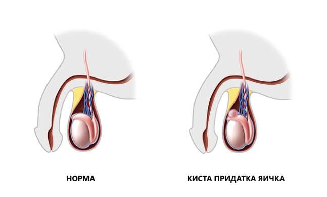 spermatosele