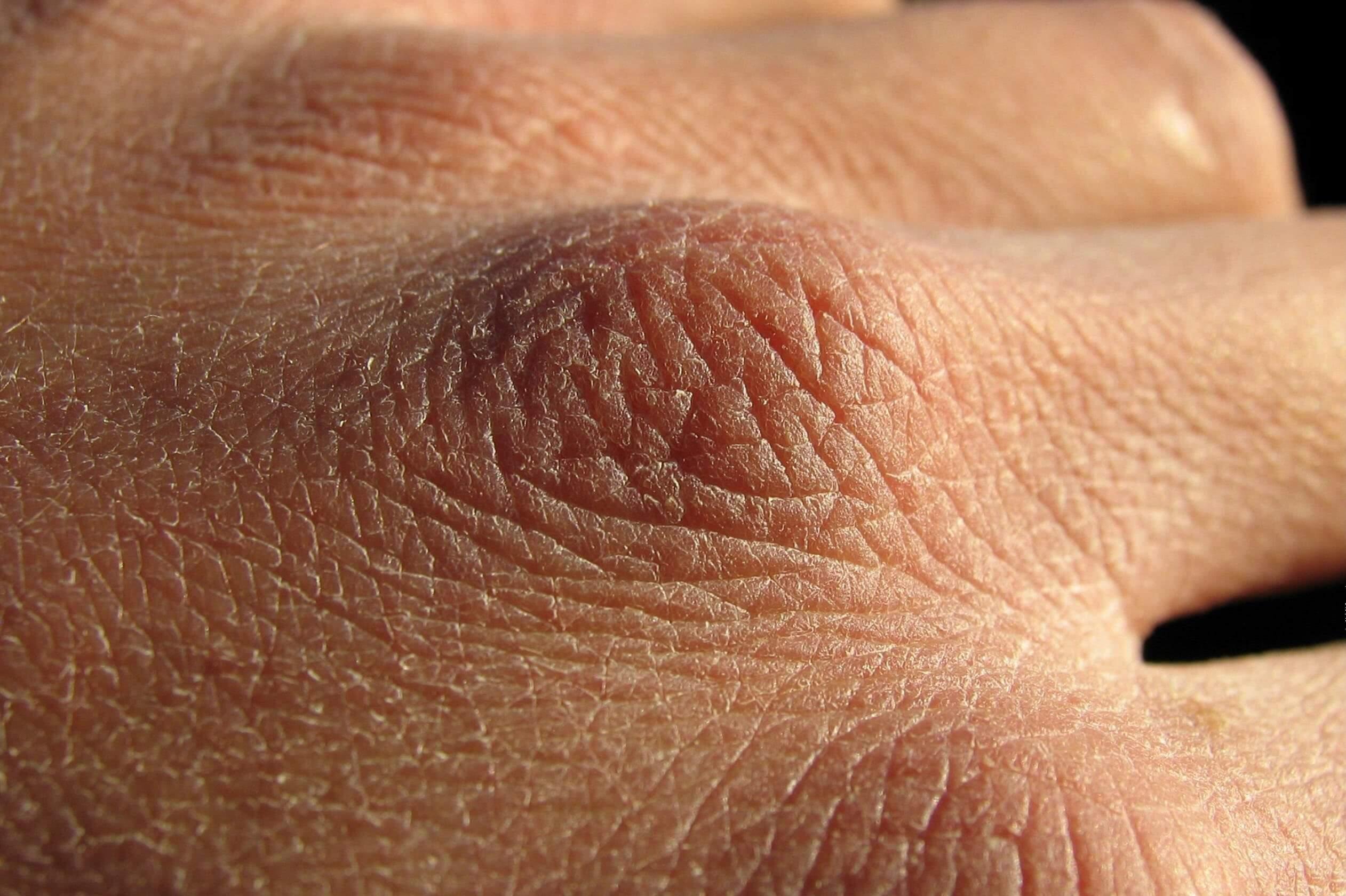Что делать когда очень сухие руки