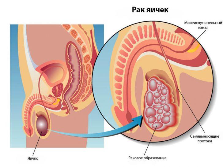 testicular_cancer