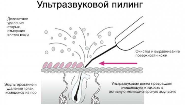 ultrazvukovoy-piling-lica