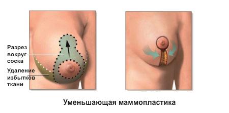 seks-v-bolshom-gorode-ofitsialniy-forum