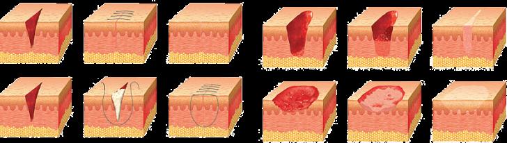 zashivanie-tkaney