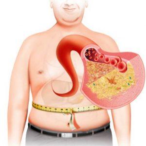 metabolichesky sindrom