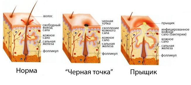 Причины появления прыщей на спине