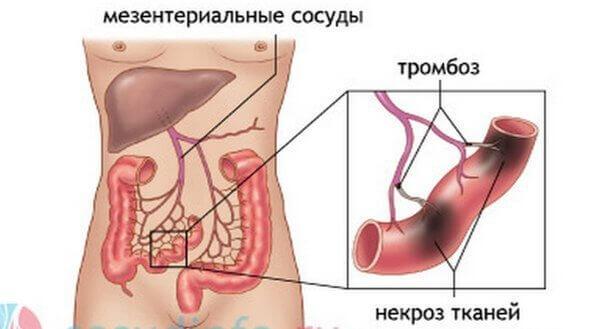 kak-vylechit-tromboflebite (1)