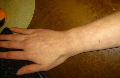 точки для лечения лазером пищевой аллергии