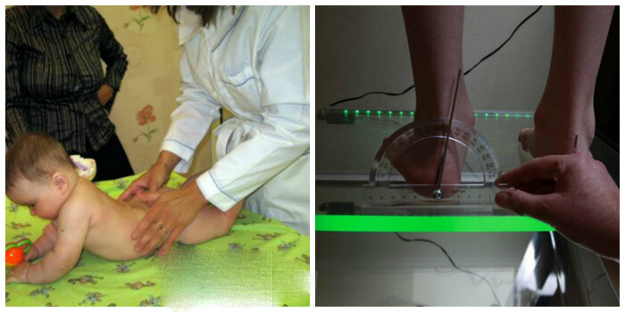 Diagnostika-deformatsii-goleni