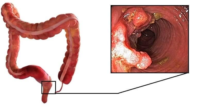 adenokarcinoma-pryamoj-kishki