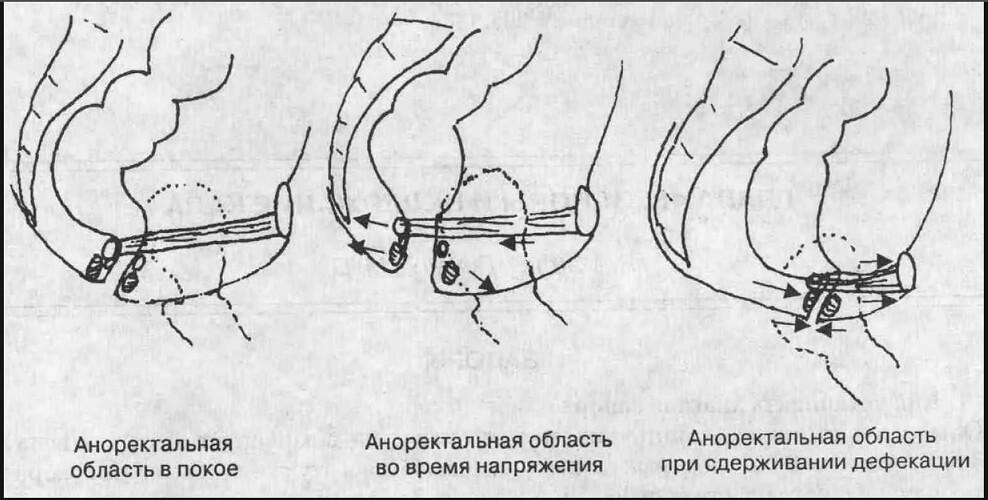 Астронотус вздутие анального отверстия