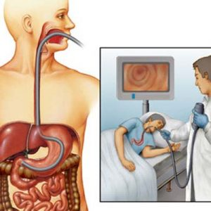 Как лечить язва желудок 175