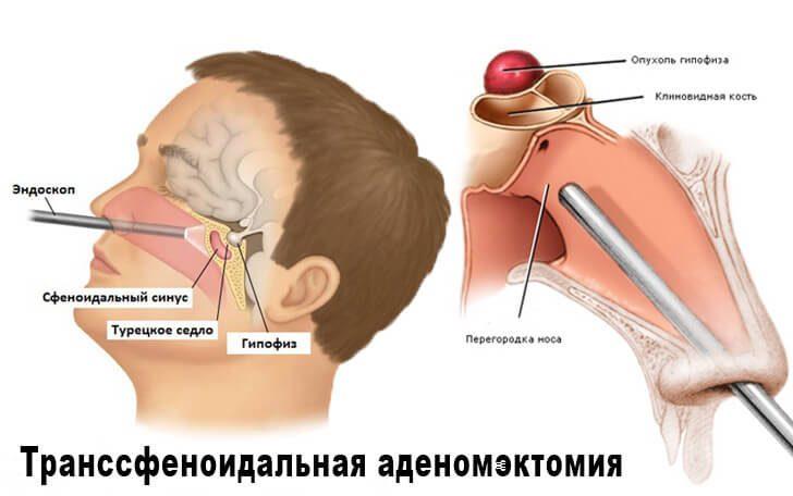 endoskopicheskaya-transsfenoidalnaya-adenomektomiya