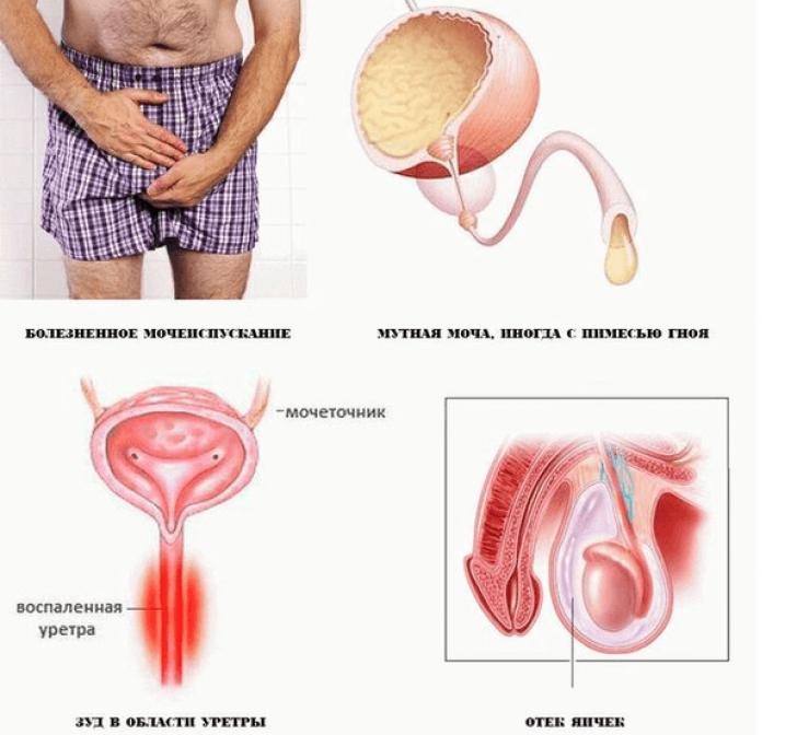 Мочеиспускательный канал воспаление как лечить
