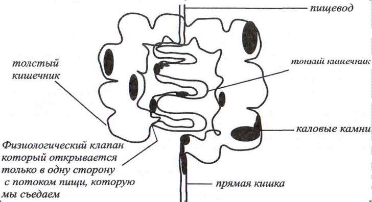 kishechnik