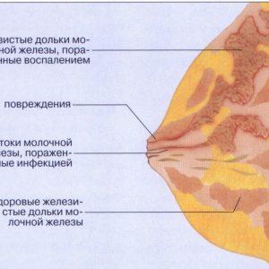 laktostaz-grudi