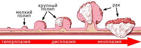 opukholi_kishechnika