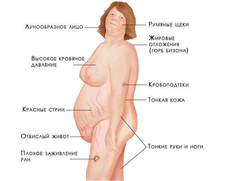 признаки повышения холестерина в организме