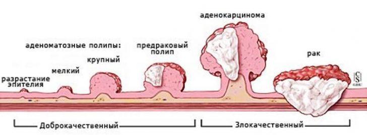 polipy-kishechnika
