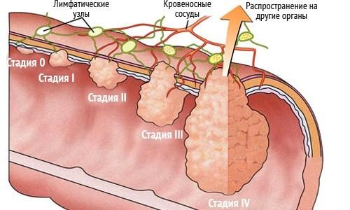 stadii-adenokarcenomy-tolstoy-kishki (1)