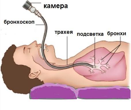 bronkhoskopiya