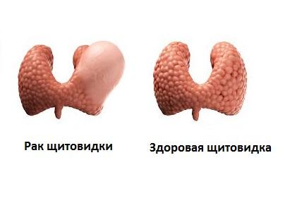 diagnoz-rak-shhitovidki