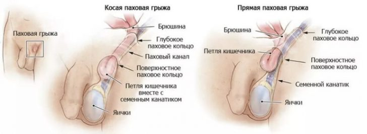 Болит в паху справа у мужчин