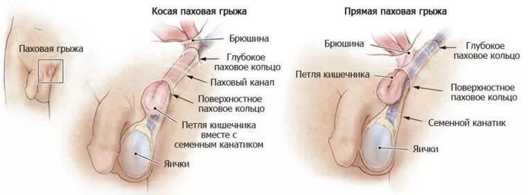 Рези в левой части пениса