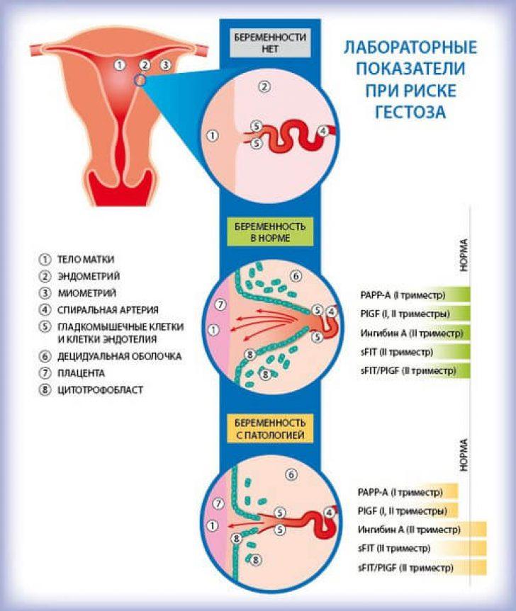 Как избавиться от гестоза при беременности