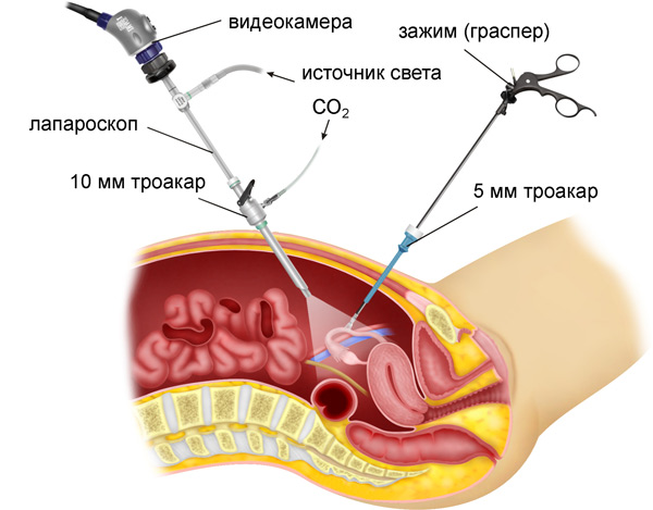 laporoskopy