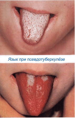 pseudotuberculosis-crimson-tongue
