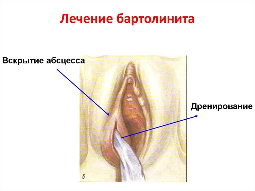 bartolinit