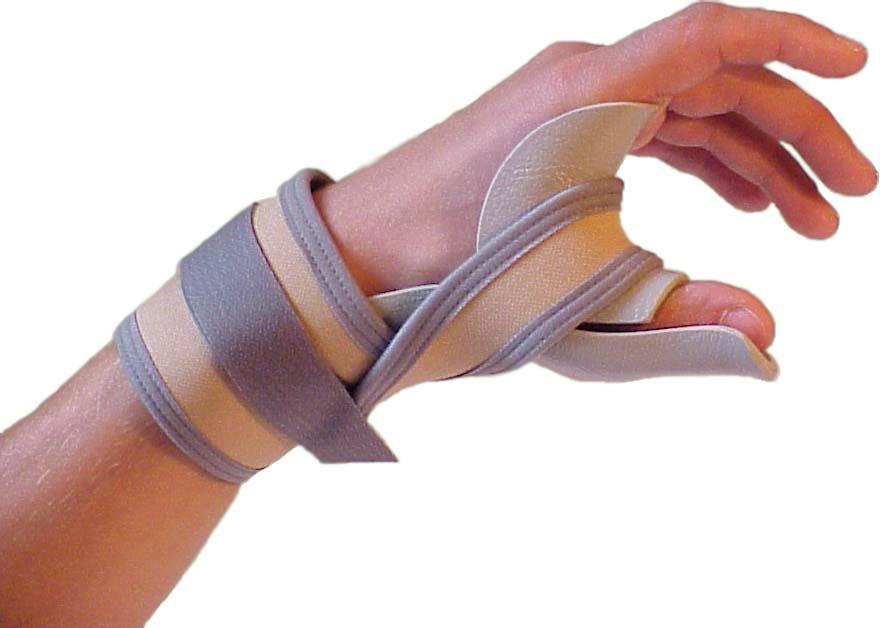 Как нужно лечить ушибы пальцев на руке