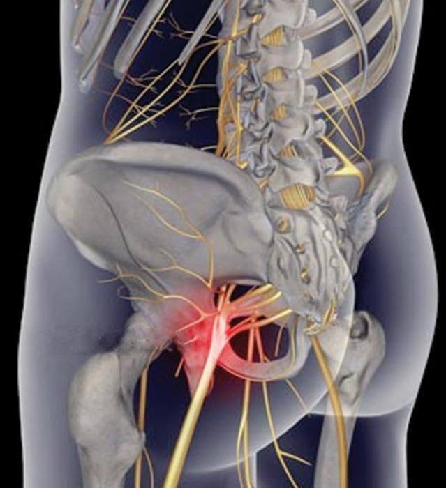 защемление нервов в коленном суставе