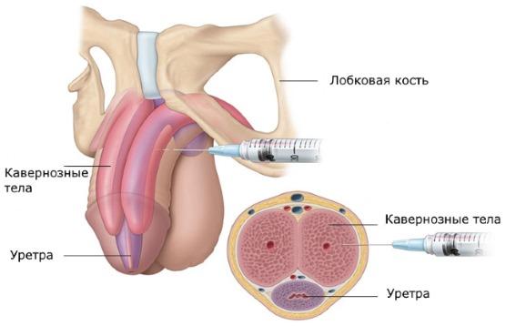 Олеогранулема пениса